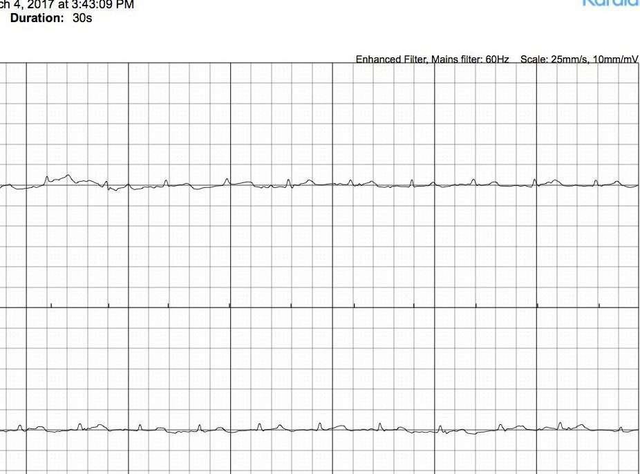 EKG-4