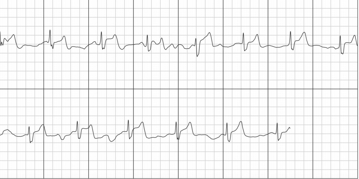 VA unclassified RBBB